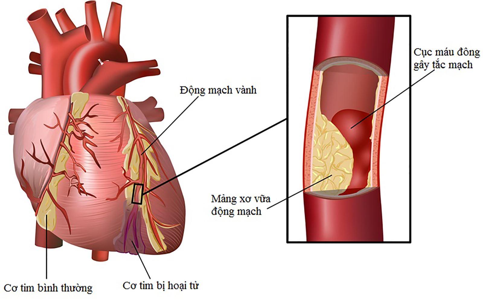 Cao huyết áp - nguyên nhân đột quỵ hàng đầu và cách phòng ngừa