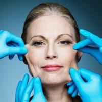 Da bị lão hóa do thiếu Collagen