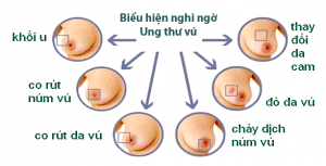 Các biểu hiện của Ung Thư Vú