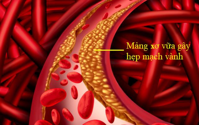 Bác sĩ cảnh báo 4 dấu hiệu của chứng tắc mạch máu não - cần chú ý đề phòng