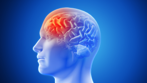 Bệnh Đột Qụy – Bạn Biết Gì Về Bệnh Đột Quỵ Thầm Lặng Chưa?