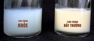 Tinh trùng loãng có tinh dịch trong và loãng như nước vo gạo