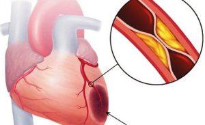 Triệu Chứng Cảnh Báo Bất Thường Về Cholesterol Cần Biết